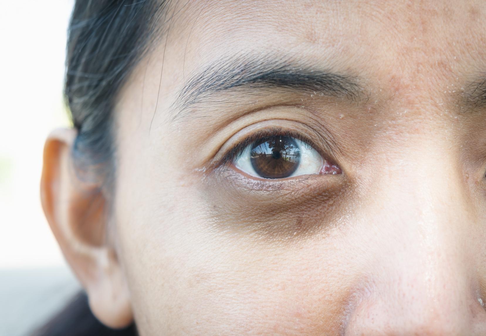 Tear Trough Treatment (dark circles under eyes) | Shore